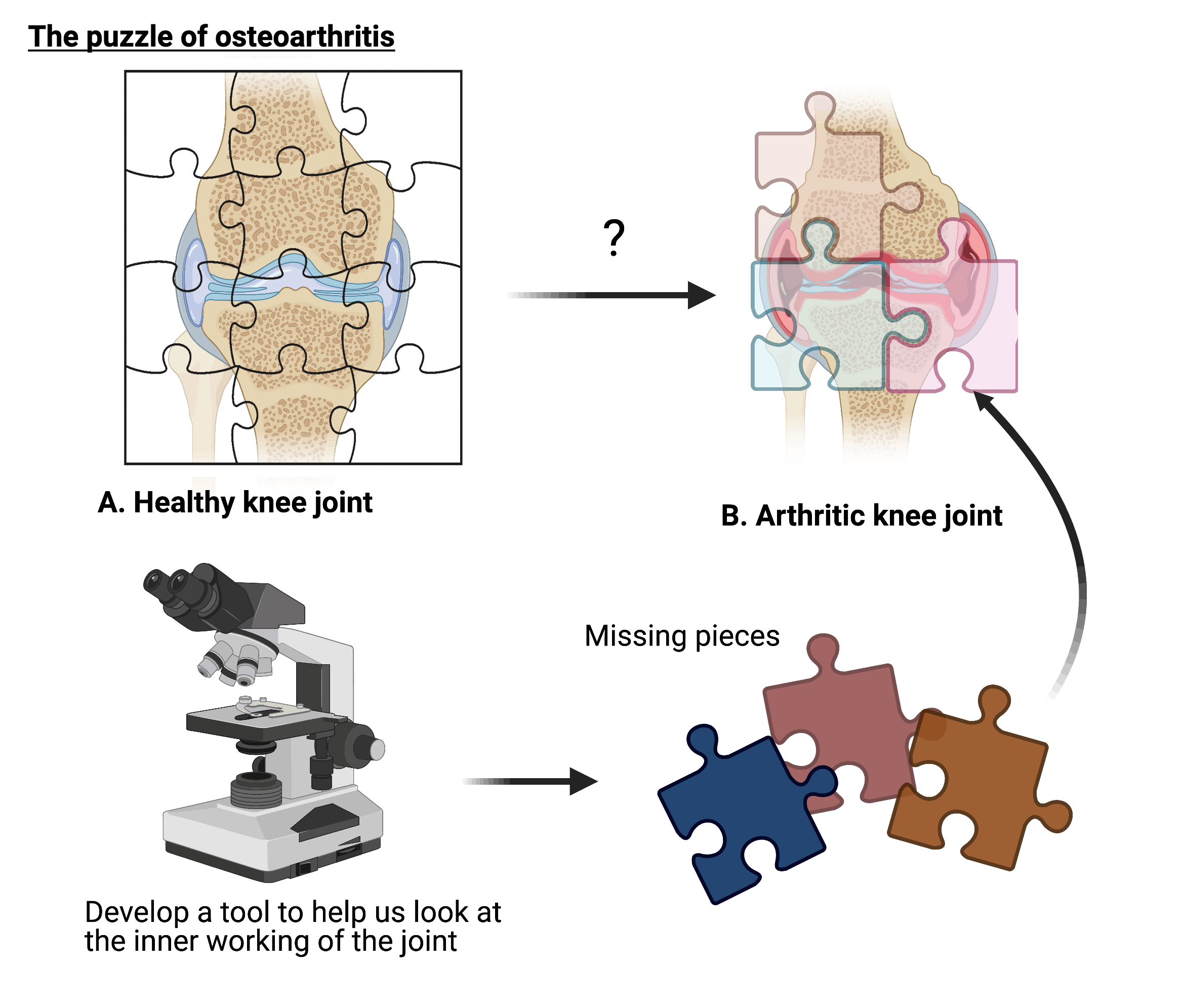 The diagram shows osteoarthritis and the puzzle of a healthy knee joint vs an arthritic knee joint